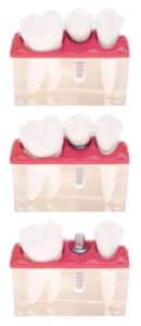 Implant dental model